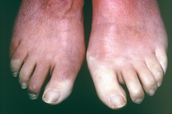 symptome der sklerodermie aktiv leben