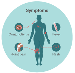 Symptoms of Zika (from the CDC)
