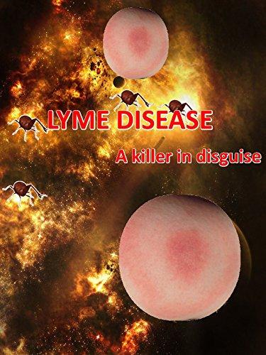 LYME Disease – A Killer in Disguise