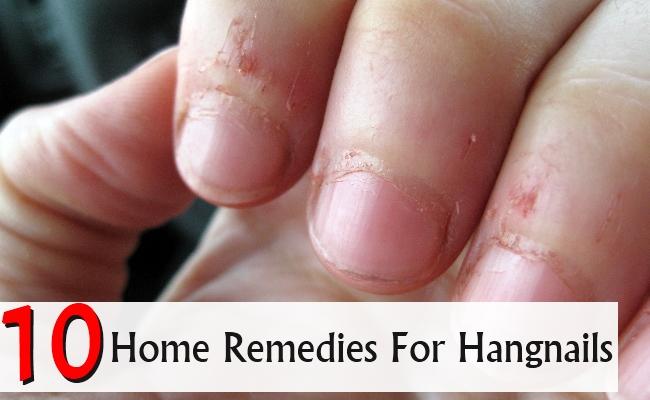 10 Home Remedies For Hangnails   Morpheme Remedies   India