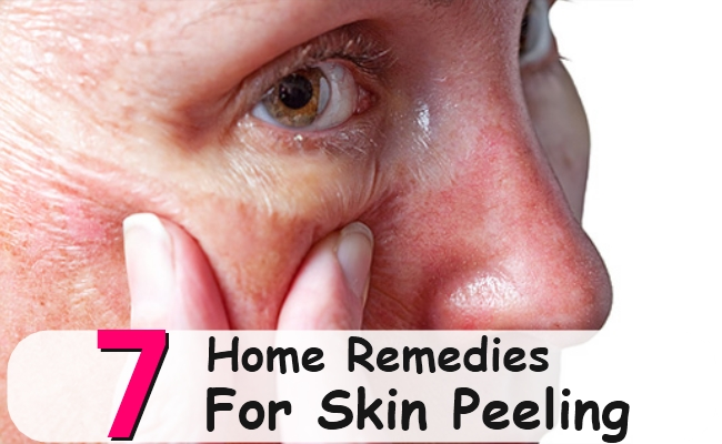 Excellent Home Remedies For Skin Peeling