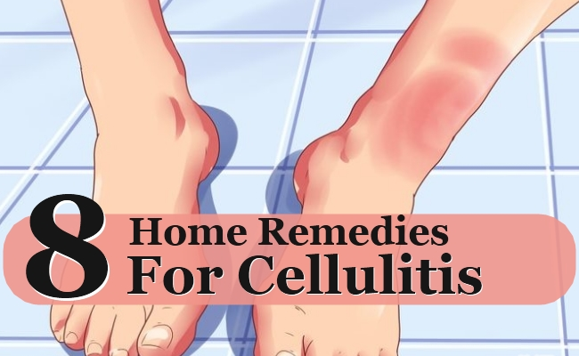 Home Remedies For Cellulitis Morpheme Remedies India - Natural home remedies for cellulitis