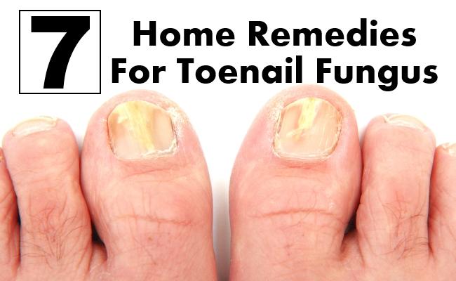 7 Home Remedies For Toenail Fungus | Morpheme Remedies | India