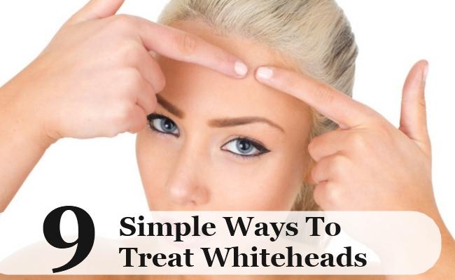 9 simple ways to treat whiteheads | morpheme remedies | india, Skeleton