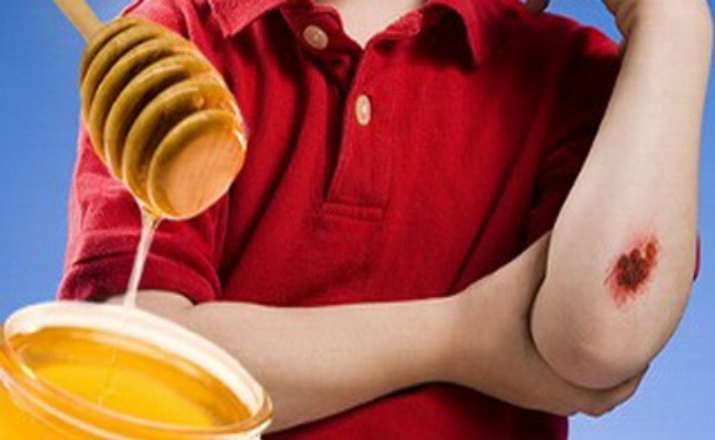 Honey Is Antiseptic And Antibacterial