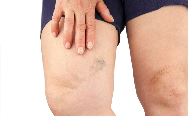 Lowers Risk Of Thrombosis