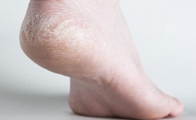 Repairs Cracked Heels