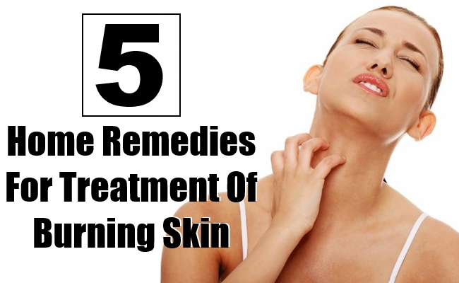 Home Remedies For Treatment Of Burning Skin
