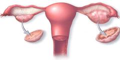 اسباب حدوث تقلصات الرحم