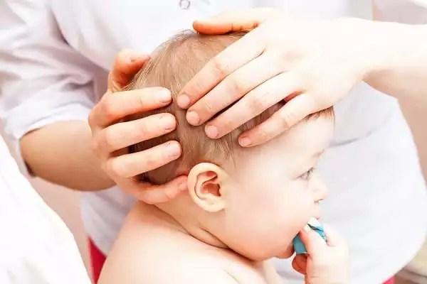 baby torticollis