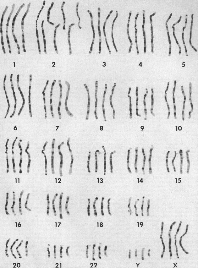 Chromosomes linked to homosexuality in christianity