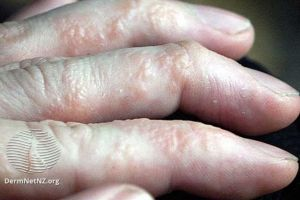 Read more about the article What is Dyshidrotic Eczema?