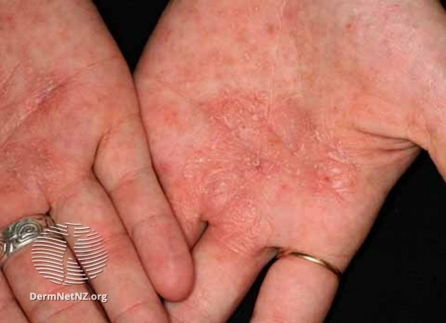 dyshidrotic eczema / pompholyx in hands
