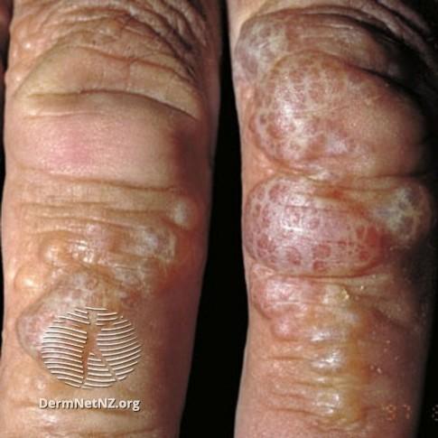 Severe dyshidrotic eczema / pompholyx in fingers