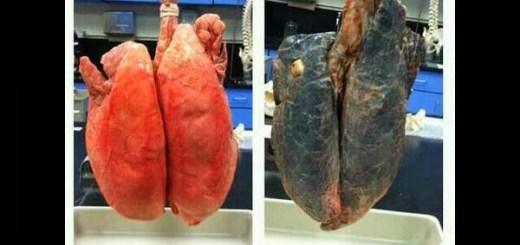 Busca les diferències entre els pulmonses diferències: pulmons de no fumador vs pulmons de fumador