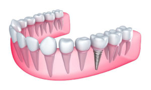 Dental implants and Oral health