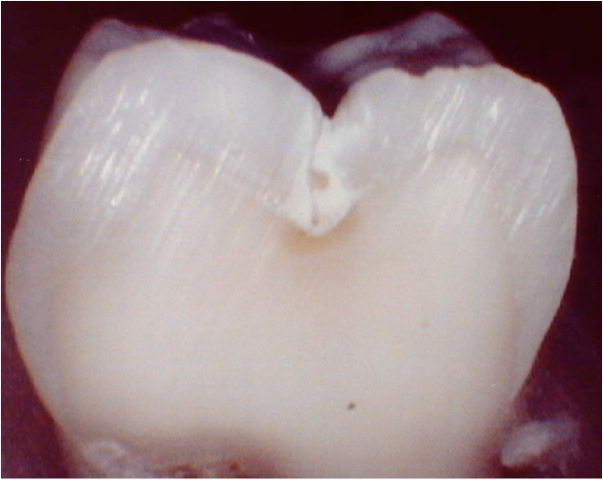 Acid Damaged Tooth