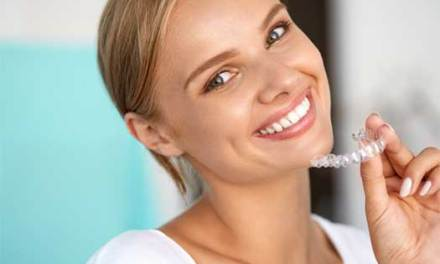 What is best teeth whitening method?