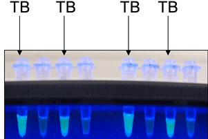 Side-by-side comparison of mycobacterial detection assays on sputum samples