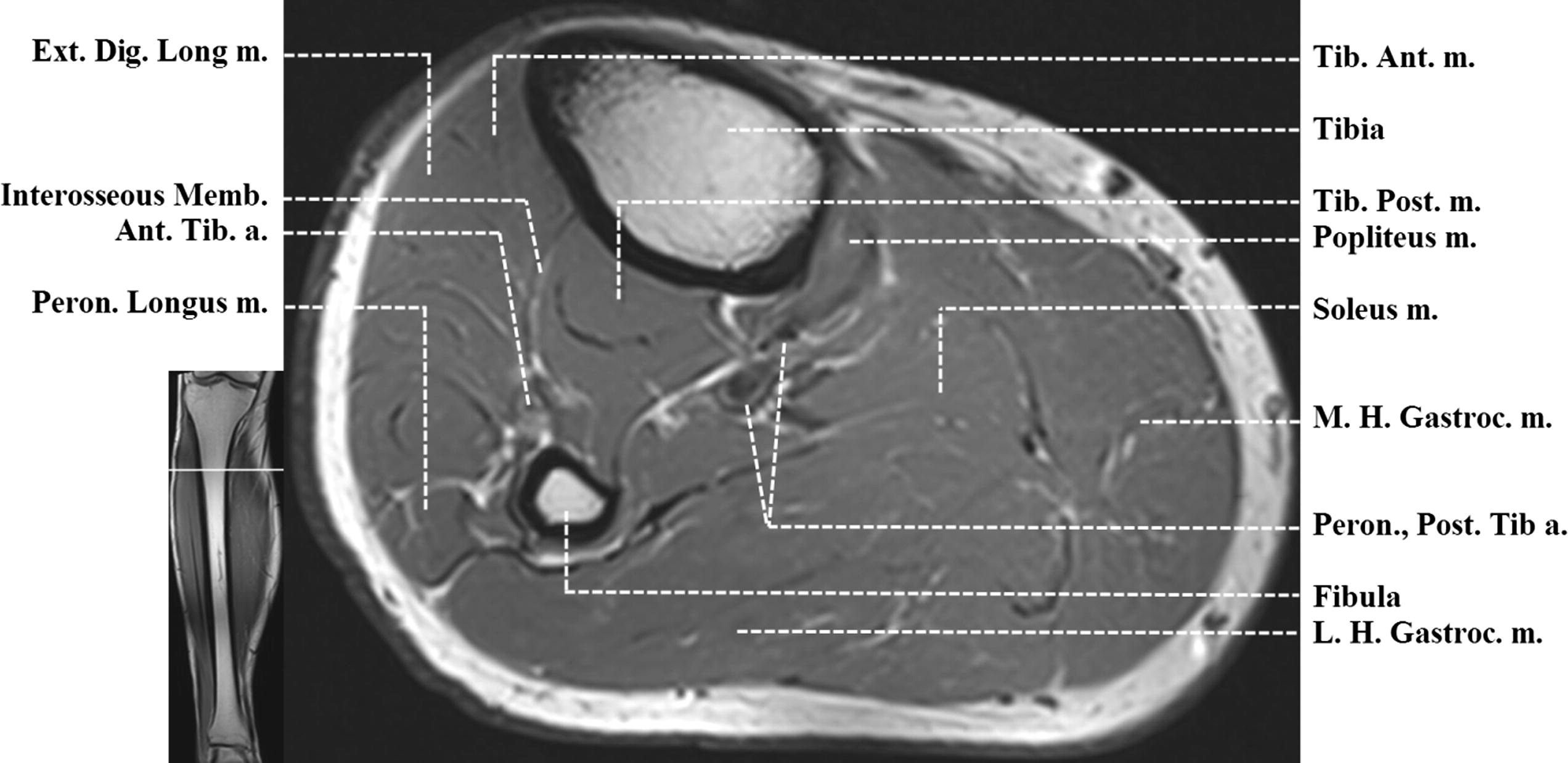 Supplemental Materials For Normal Mr Imaging Anatomy Of