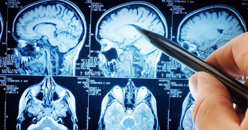 beyin-filmi-bolumler