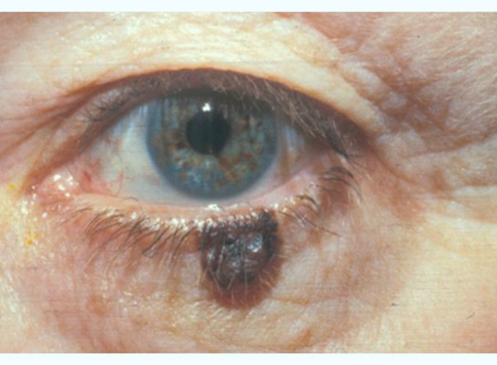 Image result for melanoma of the eyelid