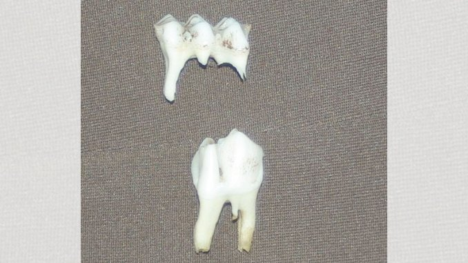 This photo shows the difference between the three-cusp temporary third premolar (top) and the permanent third premolar with two cusps (bottom).