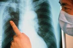 Znaczenie snu płuco
