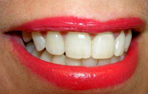 Sen o ustach/zębach