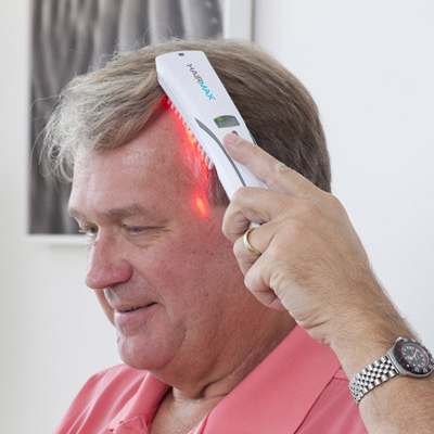 thinning areas filled in hairmax laser b review