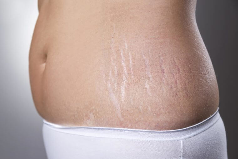How To Reduce Cellulite On Your Stomach Thighs Hips Butt
