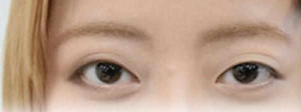 201604_Bobo Eyes