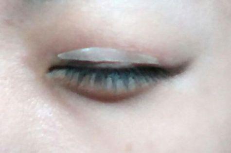 Double Eyelid 6