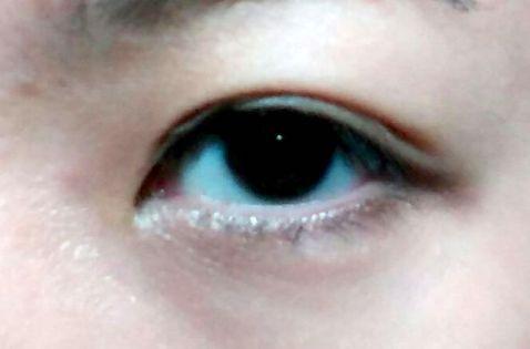 Double Eyelid 7