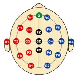 Uluslararası 10-20 Elektrot Yerleşimi – Tek sayılar solda, çift sayılar sağ tarafta. F(rontal), T(emporal), P(arietal) ve O(ccipital)