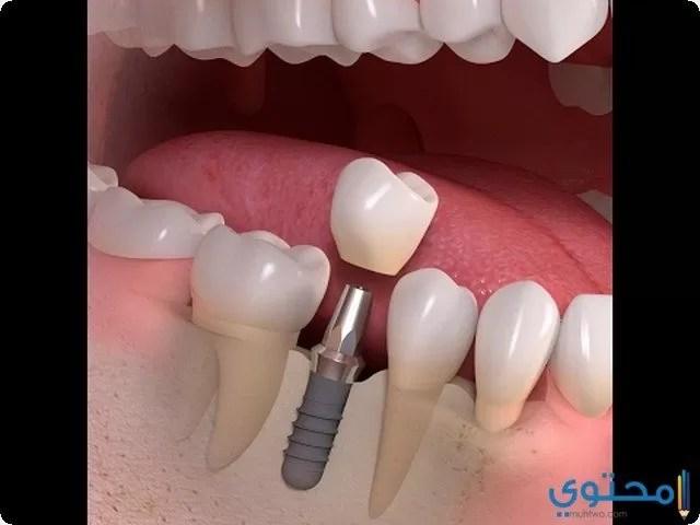 اسأل عن تفسير رؤية تكسر الاسنان والضرس موقع محتوى