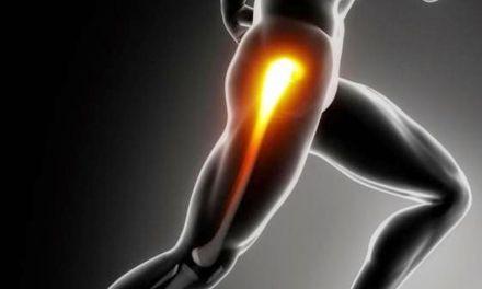 Fisioterapia muscular: Profundizamos sobre las bandas musculares.