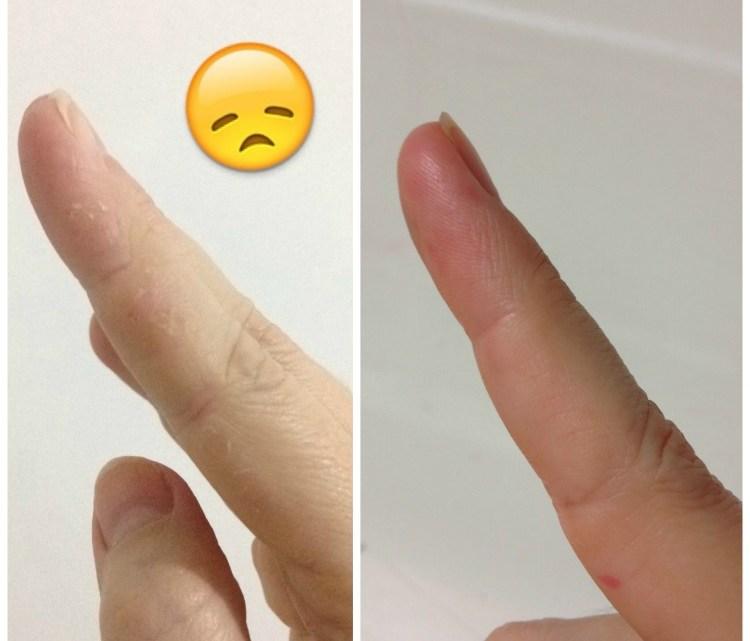 Aquaphor Eucerin – resenha de creme para pele seca e pós procedimentos