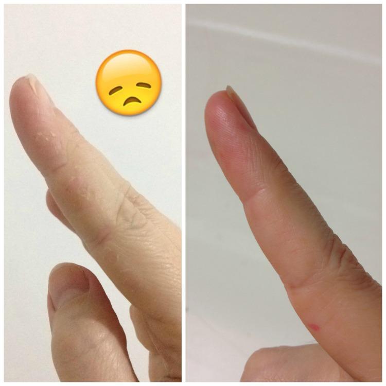 Aquaphor Eucerin antes e depois