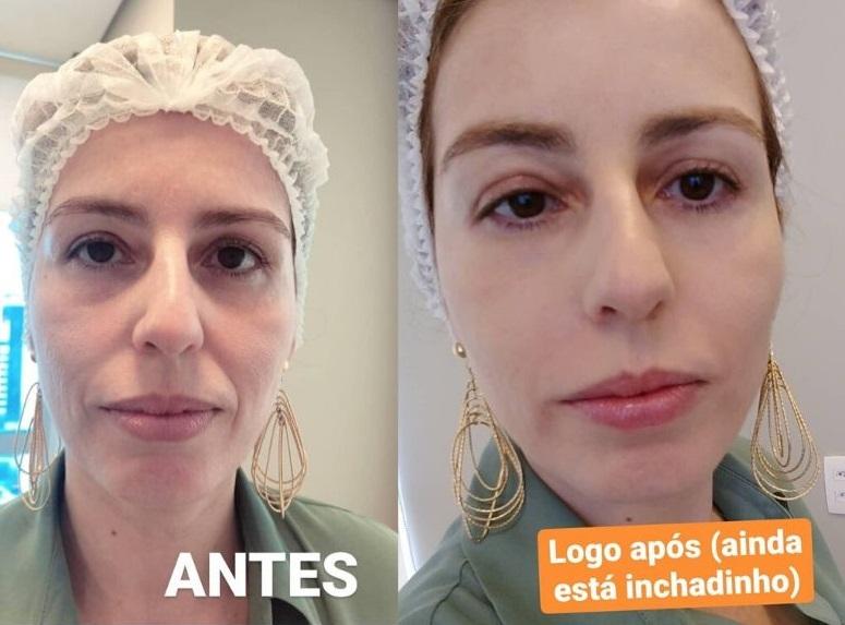 hialurônico caps antes e depois