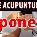 acupuntura japonesa