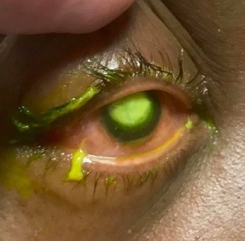 Heres Why You Don't Sleep In Contacts