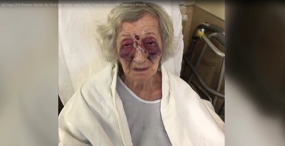 Holocaust Survivor Beaten In A Taxi