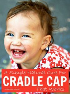Cradle cap - a simple natural cure for cradle cap that really works