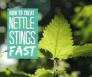 Treat nettle stings fast