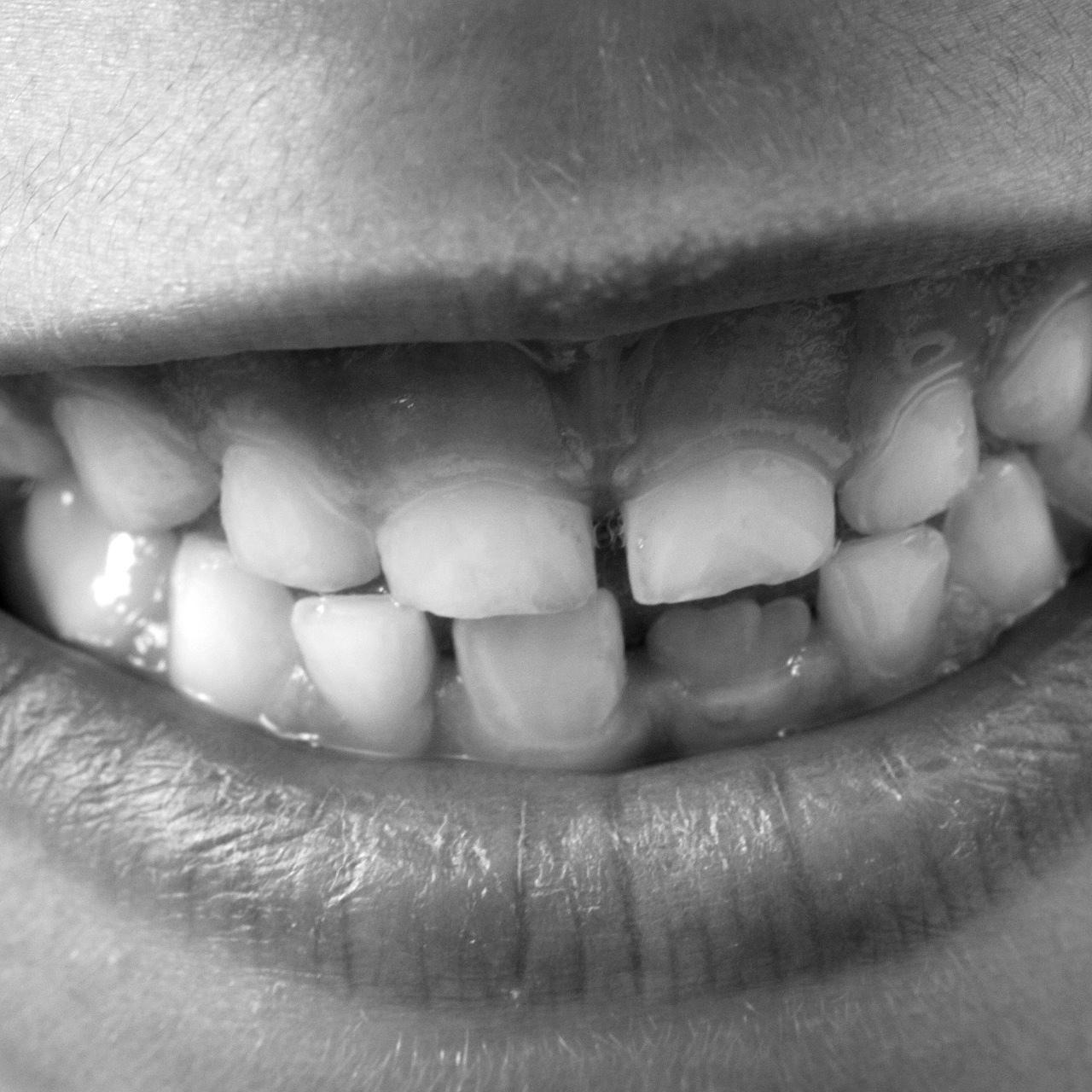 diente-niño-blackwhite