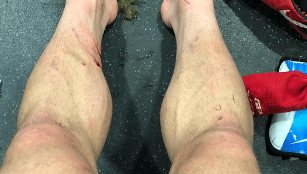 Así quedaron las piernas de Yeray tras la intensa batalla con los delanteros del Swansea en su reaparición.