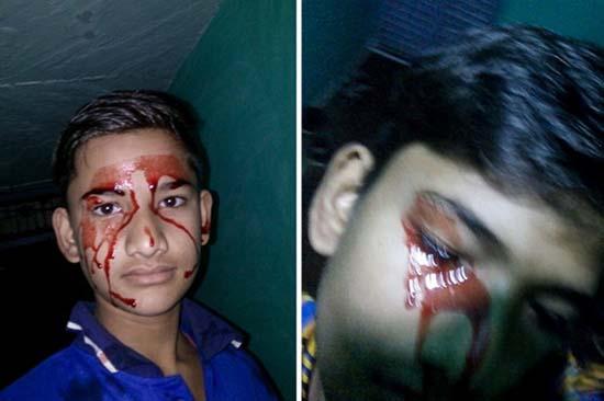 Jeune homme avec des stigmates - Médecins déconcertés par un jeune homme avec des stigmates, pleure du sang tous les jours