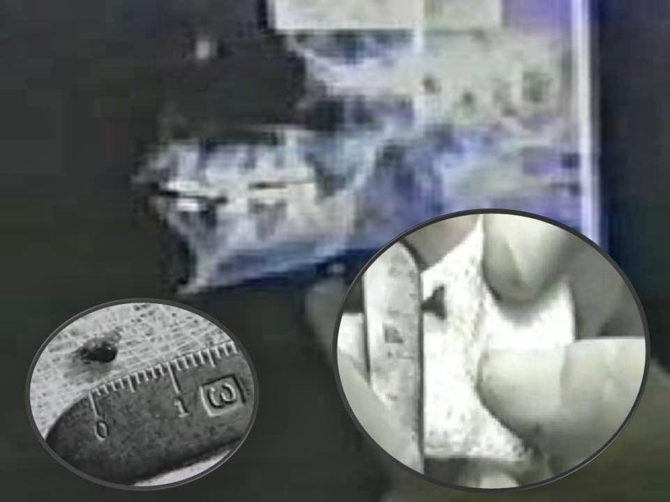 Dr. Roger Leir – Evidencia física de los implantes extraterrestres