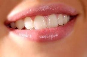 Verhindern und reduzieren Sie Falten um die Lippen
